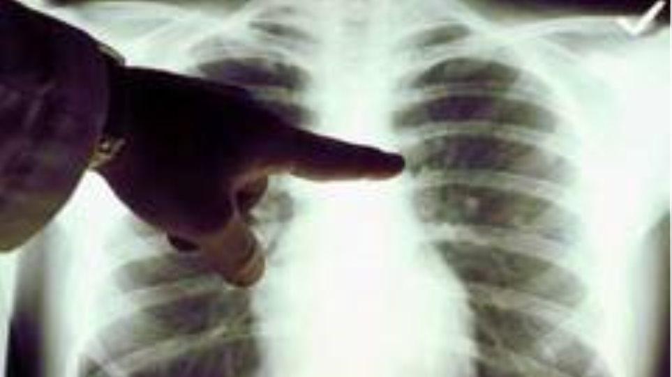 Αν πρόσεχαν τη ρύπανση στην Κίνα, θα μείωναν τα κρούσματα καρκίνου