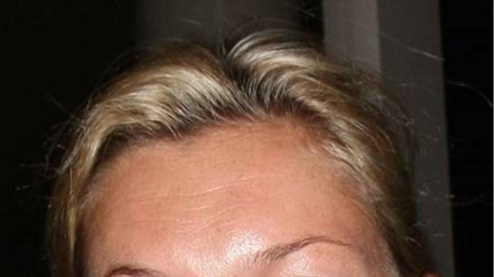 Χάλια χωρίς make-up η Kate Moss