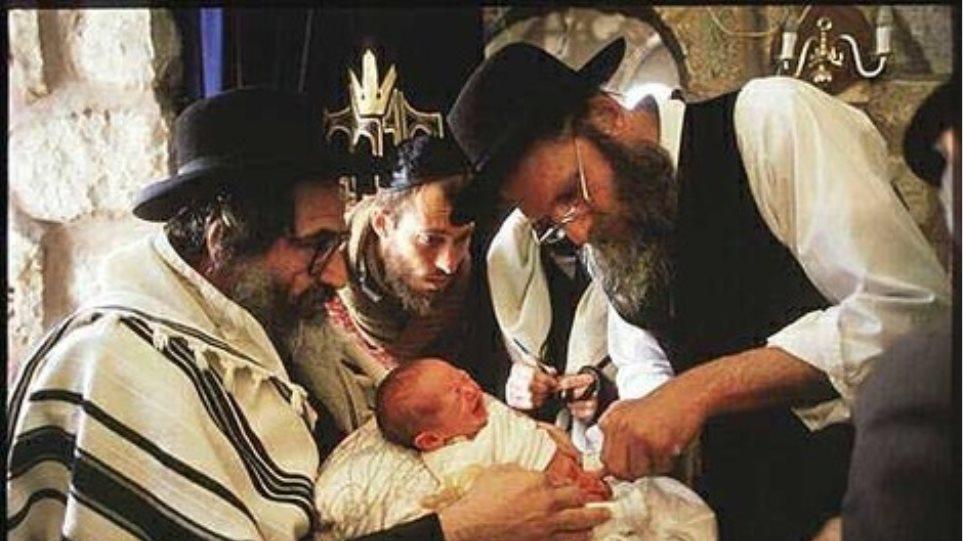 Η απαγόρευση της περιτομής έφερε κοντά Εβραίους και Μουσουλμάνους