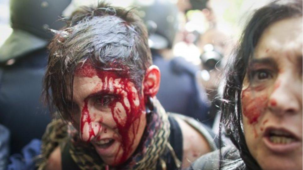 «Ματώνει» και η Ισπανία
