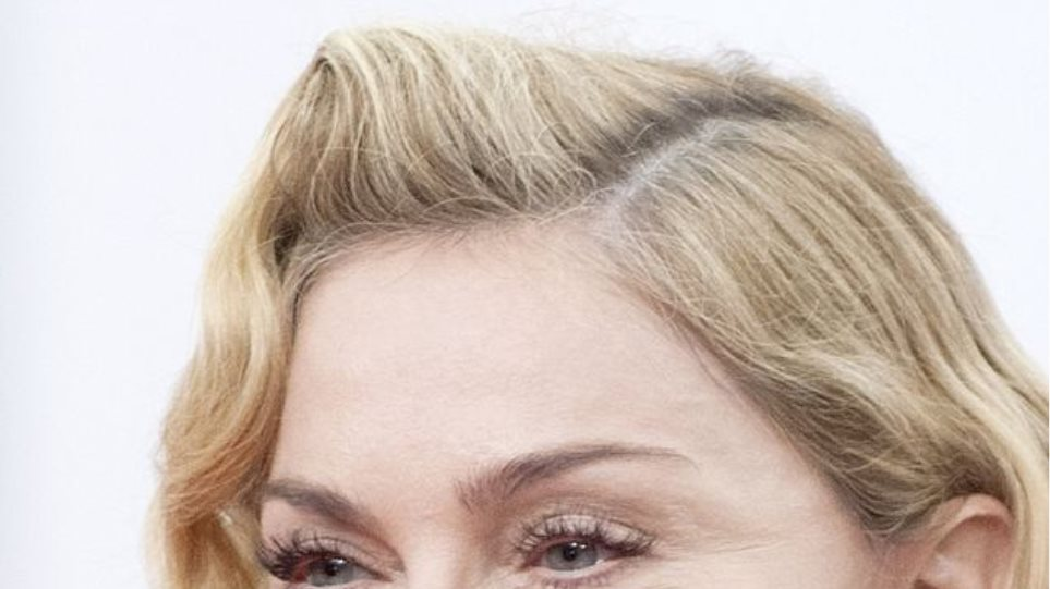 Madonna: Τι έκανε (ξανά) στο πρόσωπό της;