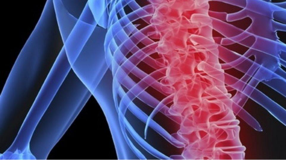 Αλήθειες και μύθοι γύρω από την οστεοπόρωση