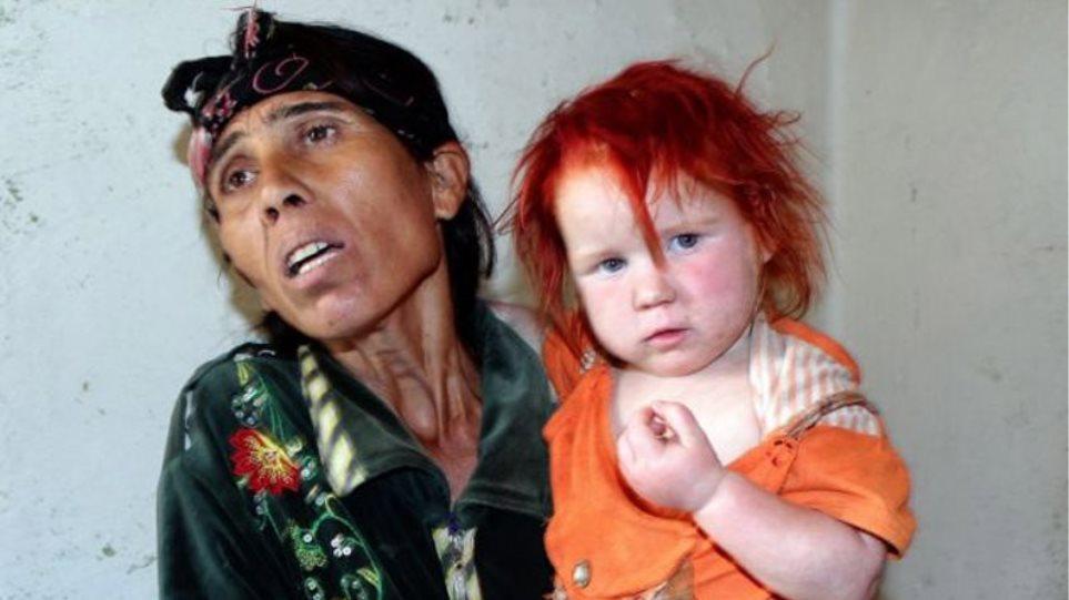 «Εχουμε γονίδιο αλμπίνου γι' αυτό τα παιδιά μας είναι ξανθά»