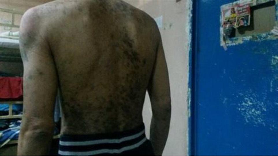 Εικόνες-σοκ μέσα από το νοσοκομείο των φυλακών Κορυδαλλού