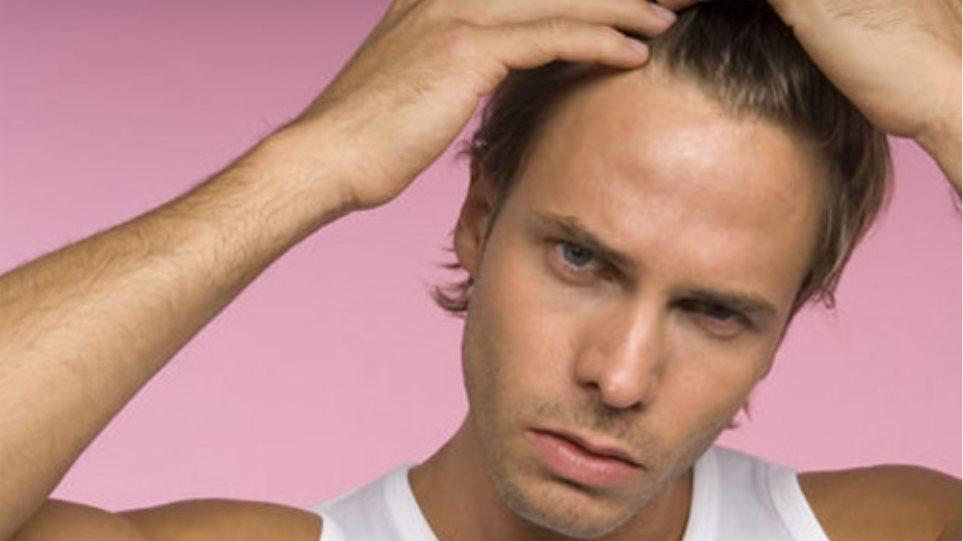 Γιατί οι άνδρες χάνουν τα μαλλιά τους και ποια είναι η λύση;