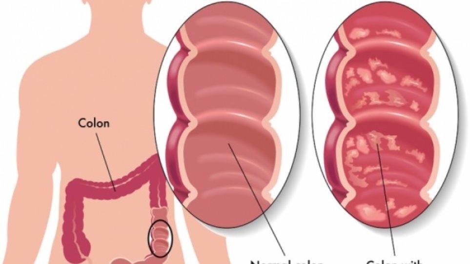 Η νόσος Crohn και η ελκώδης κολίτιδα δεν είναι ταμπού