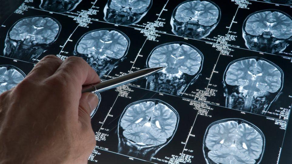 ΗΠΑ: Για πρώτη φορά αναπαράχθηκαν εγκεφαλικά κύτταρα με Αλτσχάιμερ