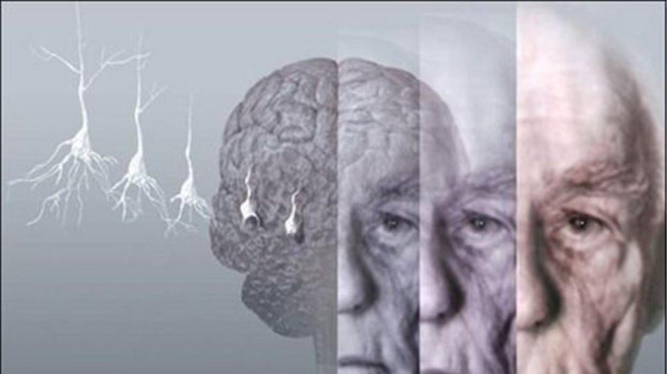Πόσο κοντά είναι η σχιζοφρένεια με τη νόσο Αλτσχάιμερ;