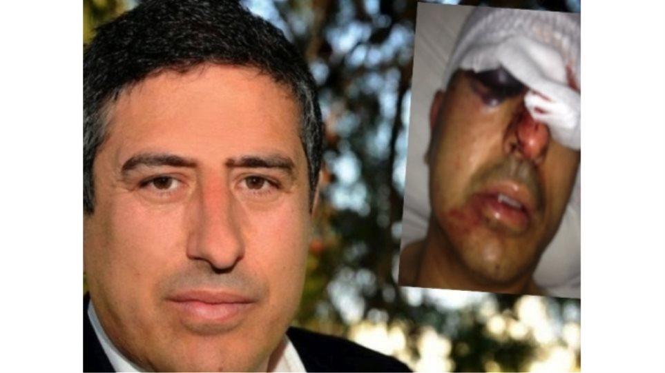 Σοκάρει η φωτογραφία του αντιδημάρχου Ηρακλείου μετά τη δολοφονική επίθεση