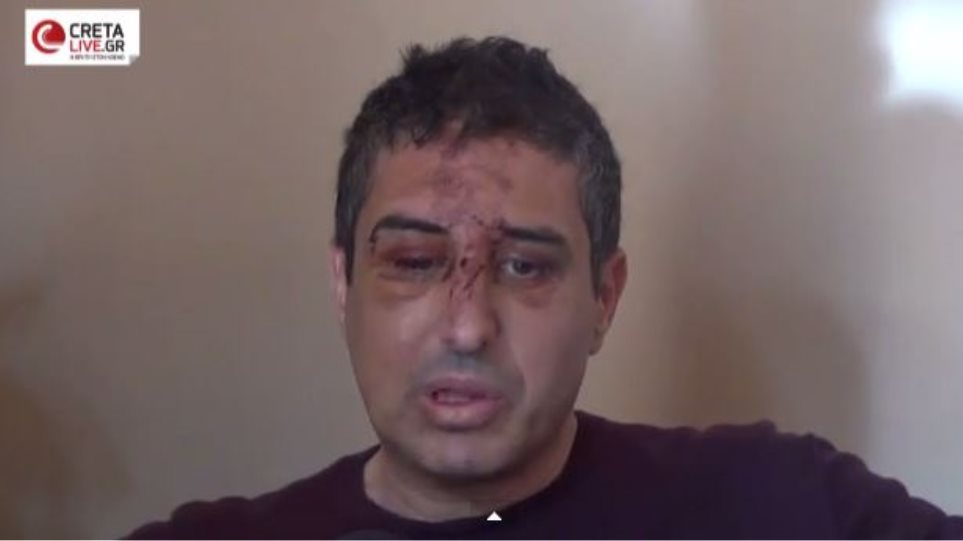 Βίντεο: Ο αντιδήμαρχος Ηρακλείου περιγράφει τη δολοφονική επίθεση που δέχθηκε