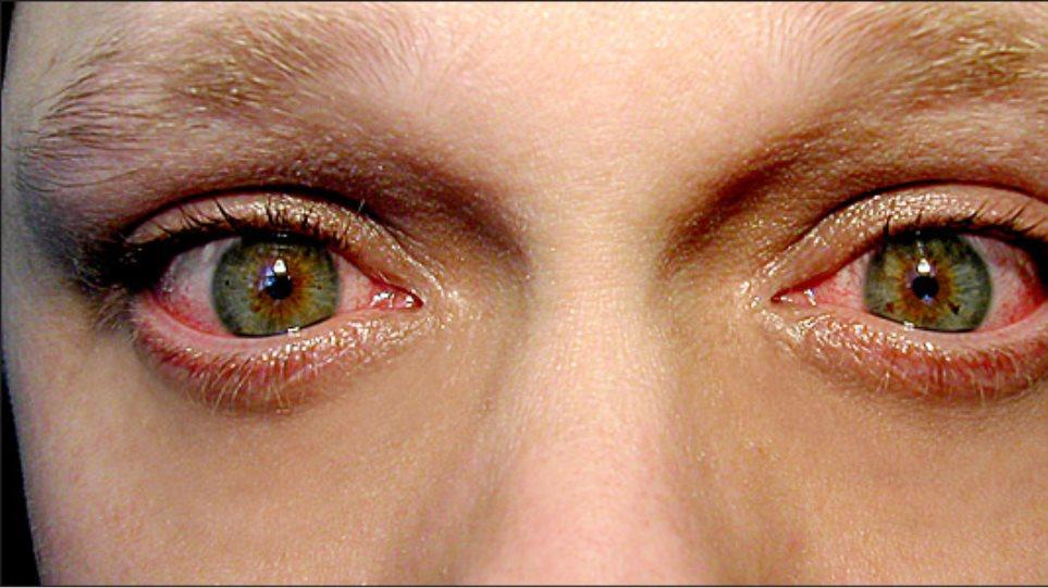 91ca30defc Πώς να ανακουφίσετε τα ερεθισμένα μάτια σας