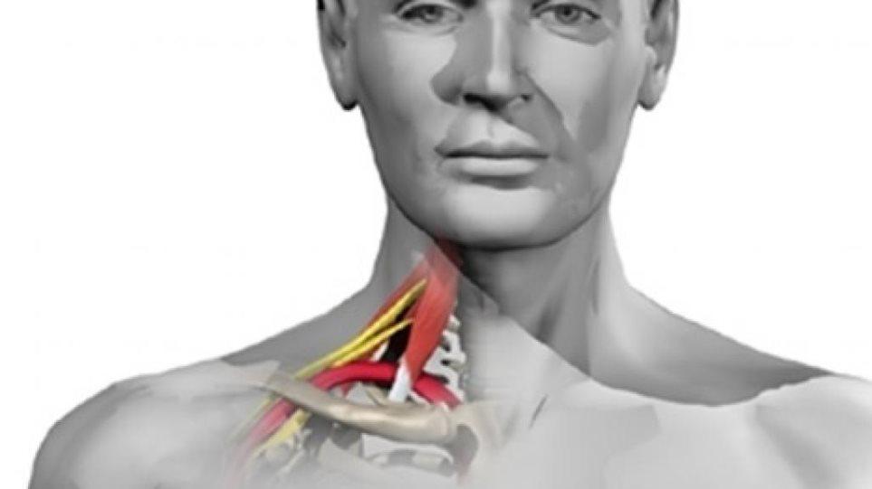 Dr. Νίκος Παρασκευάς: Τι είναι το σύνδρομο θωρακικής εξόδου και ποια τα συμπτώματα