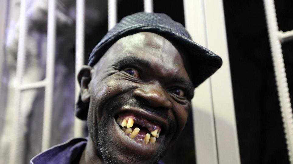 Ζιμπάμπουε: Σκάνδαλο στα καλλιστεία για τον «Mister Ugly» - Ο νικητής δεν είναι πολύ... άσχημος!