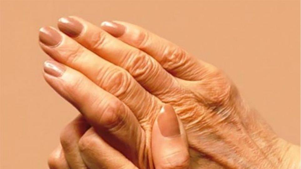 Τεστ αίματος κάνει διάγνωση της ρευματοειδούς αρθρίτιδας έως 16 χρόνια προτού εμφανισθεί