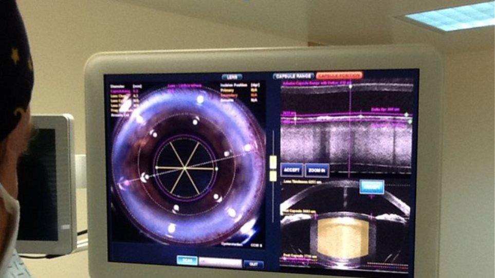 H πιο σύγχρονη μονάδα για laser χειρουργική καταρράκτη και διαθλαστική χειρουργική στο νοσοκομείο METROPOLITAN