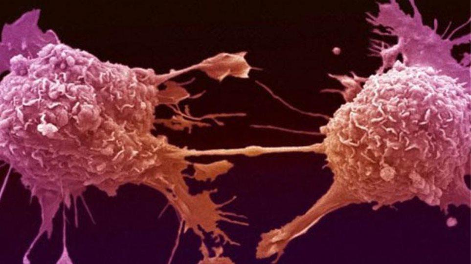 Πανεπιστήμιο Κύπρου: Σημαντική ανακάλυψη για τις μεμβράνες των κυττάρων