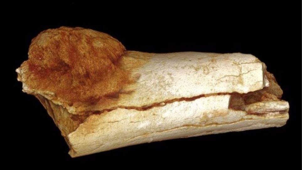 Βρέθηκε το αρχαιότερο δείγμα καρκίνου σε ανθρώπινο οστό ηλικίας 1,7 εκατ. χρόνων