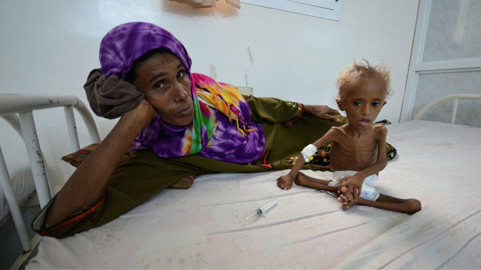 Συγκλονιστική φωτογραφία: Η φρίκη του εμφυλίου της Υεμένης σε ένα υποσιτισμένο παιδί