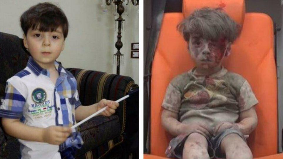 Ομράν: Το παιδί-σύμβολο του συριακού δράματος μιλάει για τη νέα του ζωή