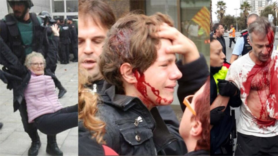 Σοκ στην Καταλονία: Πλαστικές σφαίρες, ξύλο και πάνω από 844 τραυματίες από την επίθεση της αστυνομίας