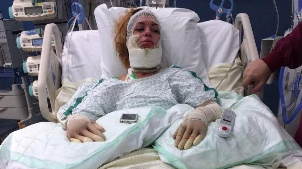 Βέλγιο: 25χρονη άνοιξε το καπάκι της κατσαρόλας και... κόντεψε να καεί ζωντανή!