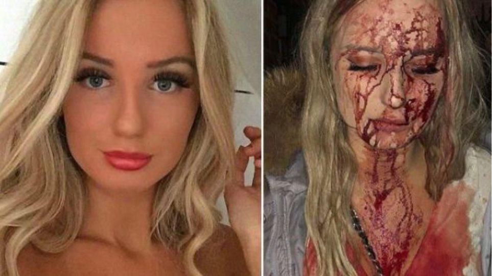 Φωτογραφία σοκ: Τη χούφτωσαν σε κλαμπ και όταν αντέδρασε της έσπασαν το κεφάλι με μπουκάλι!
