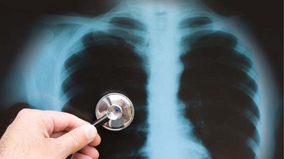 Τουλάχιστον 1,8 εκατομμύρια παιδιά και νέοι παθαίνουν φυματίωση κάθε χρόνο