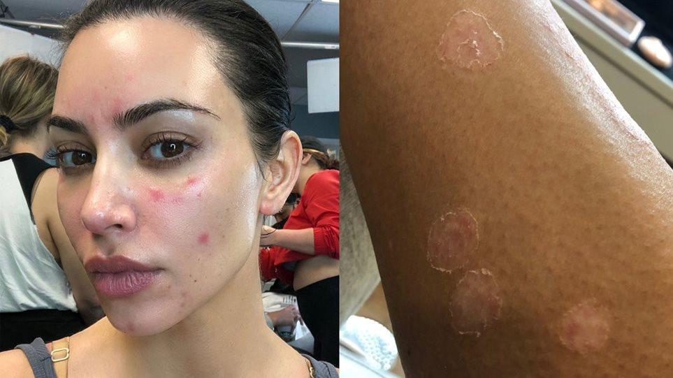 Η Kim Kardashian βγάζει το make up και μας δείχνει τα σημάδια της ψωριασικής αρθρίτιδας στο σώμα της! (ΦΩΤΟ)