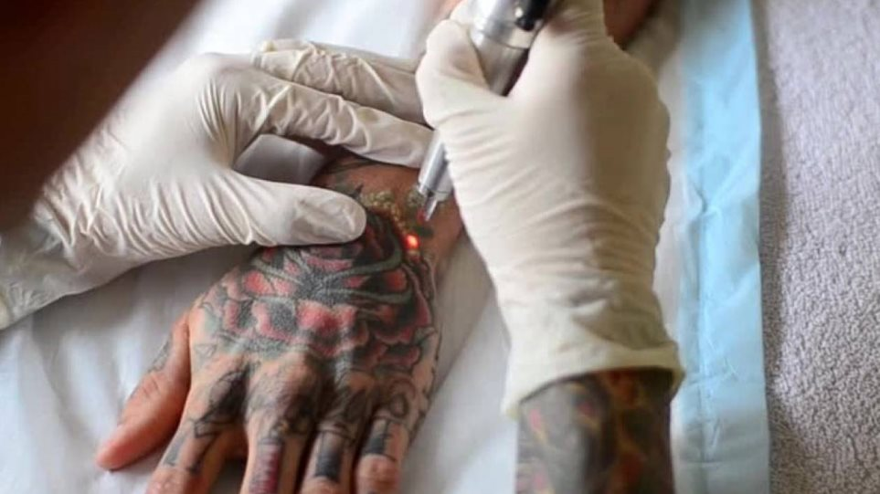 tattoo-removal-