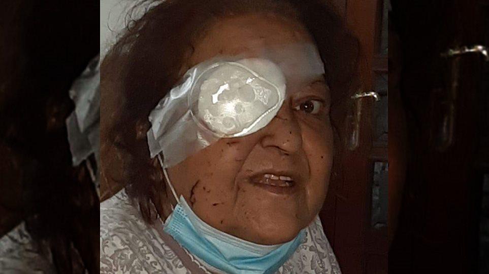 Έκρηξη στη Βηρυτό - Συγκλονίζει μαρτυρία Ελληνίδας: Έχασα το μάτι μου(video)
