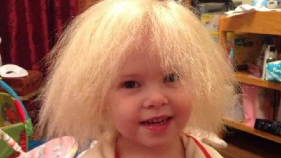 0_PAY-GIRL-HAS-UNCOMBABLE-HAIR-SYNDROME