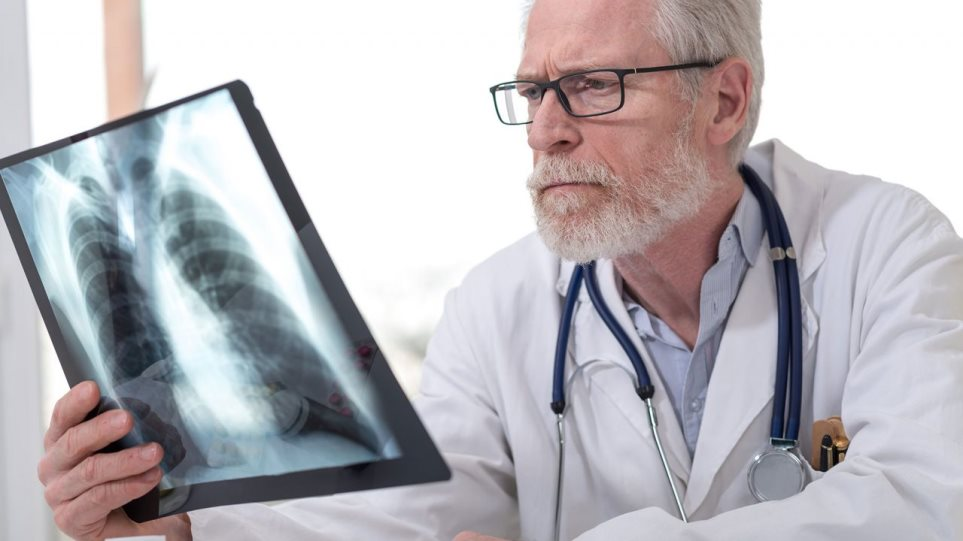 190320153121_Lung-Doctor-XRAY-1280x720__1_