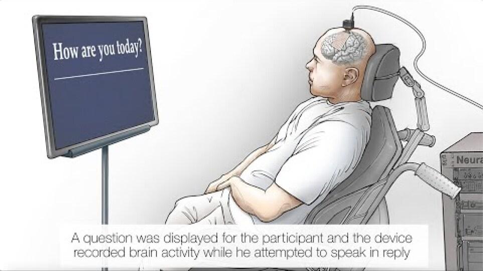 """Neuroprosthesis"" Restores Words to Man with Paralysis"
