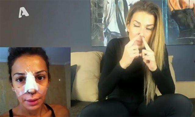 Η Ελένη Χατζίδου μιλά για την πλαστική στη μύτη της και τα ενέσιμα που κάνει στο πρόσωπό της