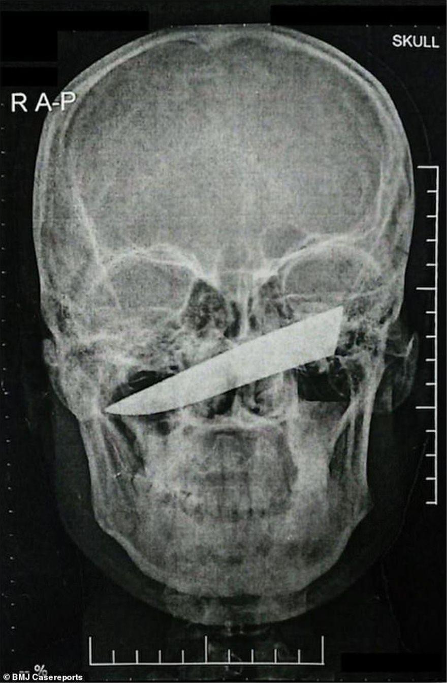 skull-knife1