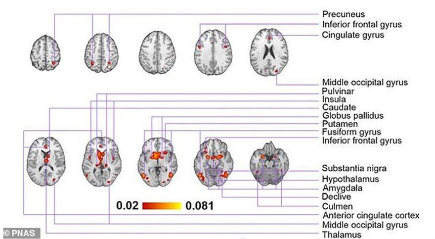 brain_map2