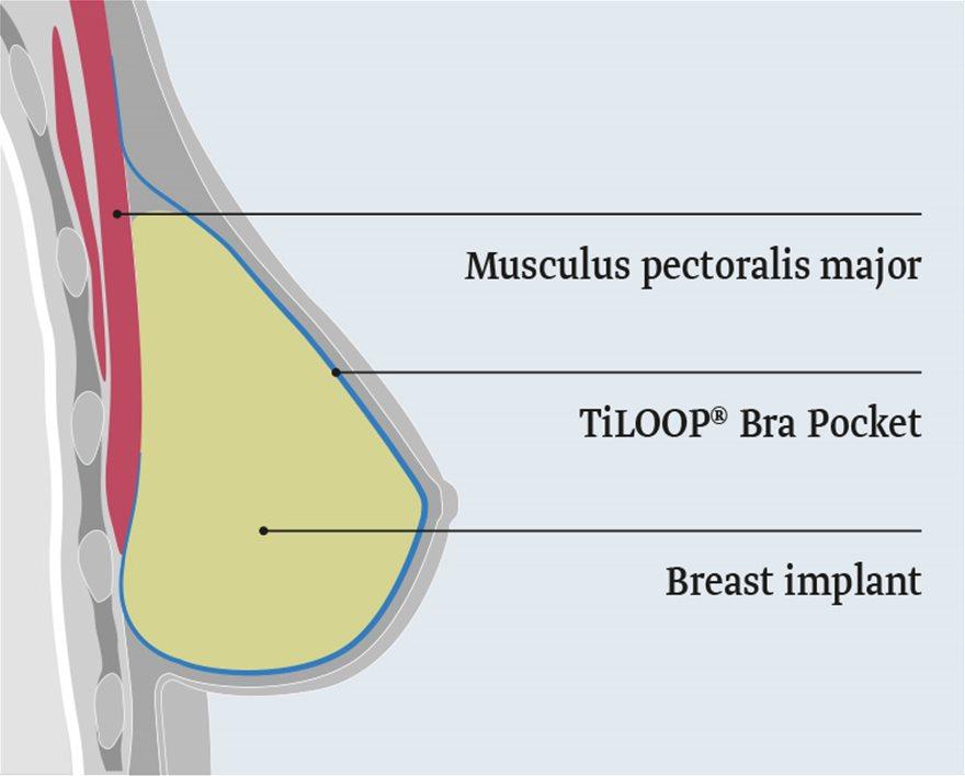 TiLOOP-Bra_Pocket_Lage_EN