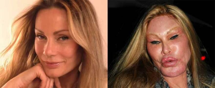 jocelyn-wildenstein-before-after